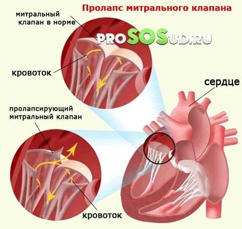 Частичный отрыв хорд задней створки митрального клапана. Отрыв хорды митрального клапана лечение. Операция или медикаментозное лечение при инфекционном поражении митрального клапана