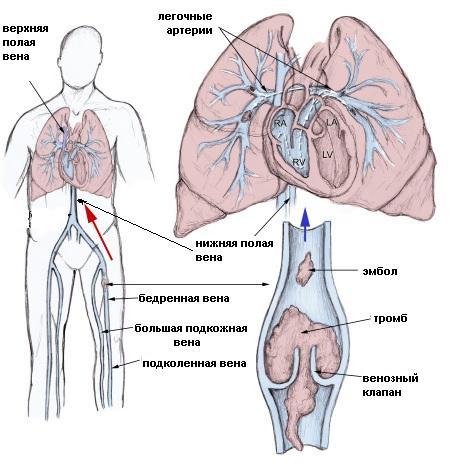 simptomele venelor profunde produse cu microsfere din varicoză