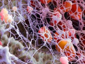 Θρομβοκύτταρα