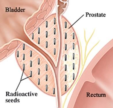prostate-seeds