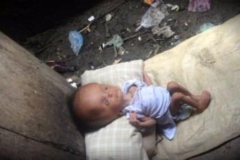 Эту девочку нашли в куче мусора на грани смерти. Но посмотрите, что с ней случилось потом!
