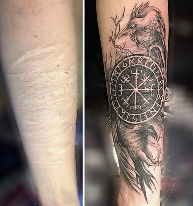 20 восхитительных татуировок, которые превратили шрамы в произведения искусства