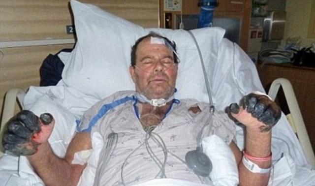 Мужчина попал в больницу после укуса кота. Результаты анализов показали: его болезнь родом из Средневековья!