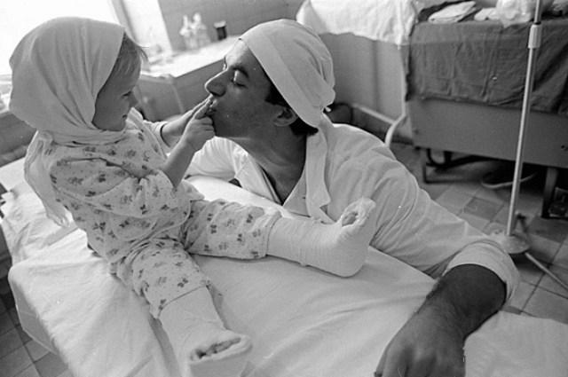 Родной отец отрезал этой малышке обе ноги косилкой. Но врачи смогли совершить немыслимое…