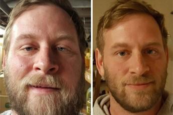 """20 фото """"до и после"""": они завязали со спиртным"""