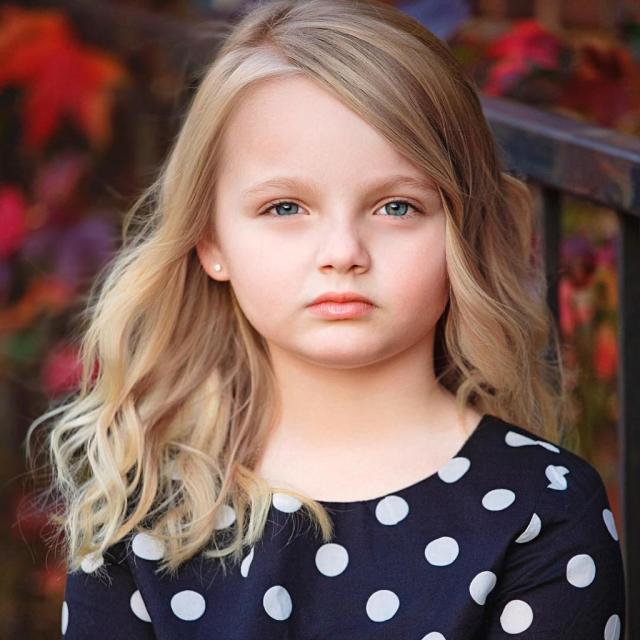 Через 7 лет девочка с ангельским лицом полностью растеряла свою красоту