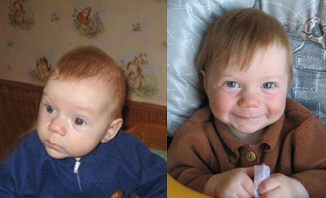 Как же важно быть любимым: Фото детей до и после усыновления