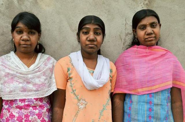 Судьба необычных сестер из Индии