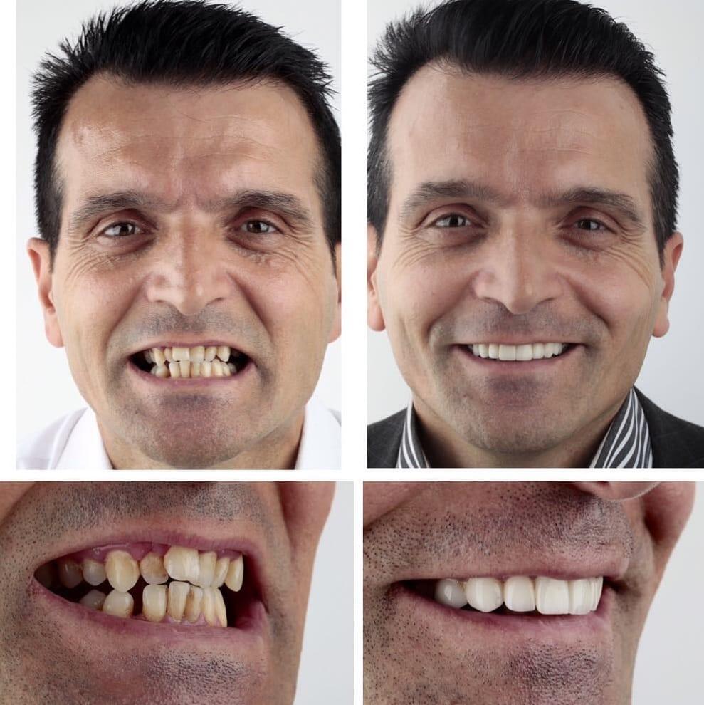 красивые зубы фото до и после защищает продукты воздействия