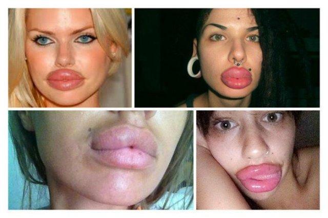 Вот что мужчины думают о женщинах, которые увеличивают губы…