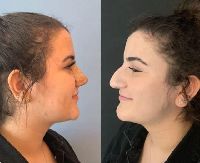 Подарили красоту и очарование: как обычные женщины преобразились после ринопластики