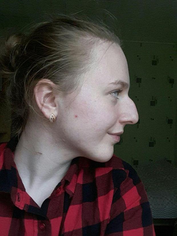 Люди, которые имеют неидеальные носы, зато они обожают свою изюминку