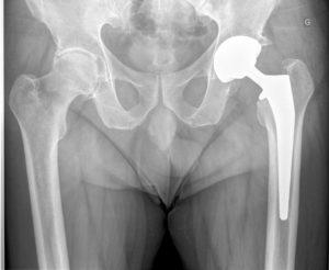 L'intervention de prothèse de hanche - Docteur Gaël Poirée Nice