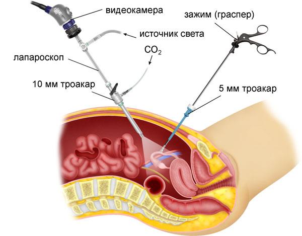 Как проводятся санация и дренирование брюшной полости