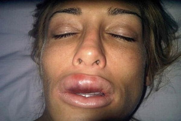 How much swelling comes off after hyaluronic lip augmentation