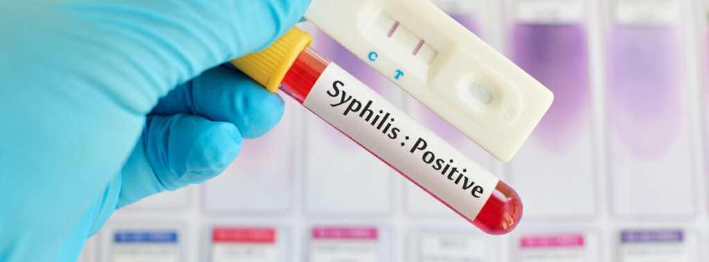 pruebas sifilis