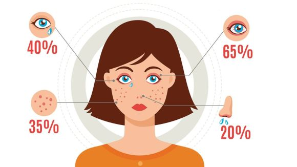 sintomas-alergia-1280x720x80xX