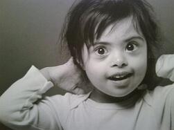 умственная отсталость у ребенка фото