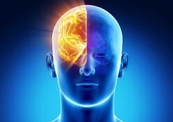 нейропсихология фото