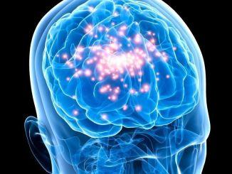 Epilepsia en el cerebro