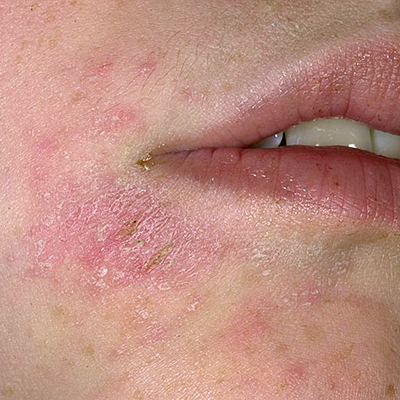 Difference between eczema and psoriasis in sympthoms and ...