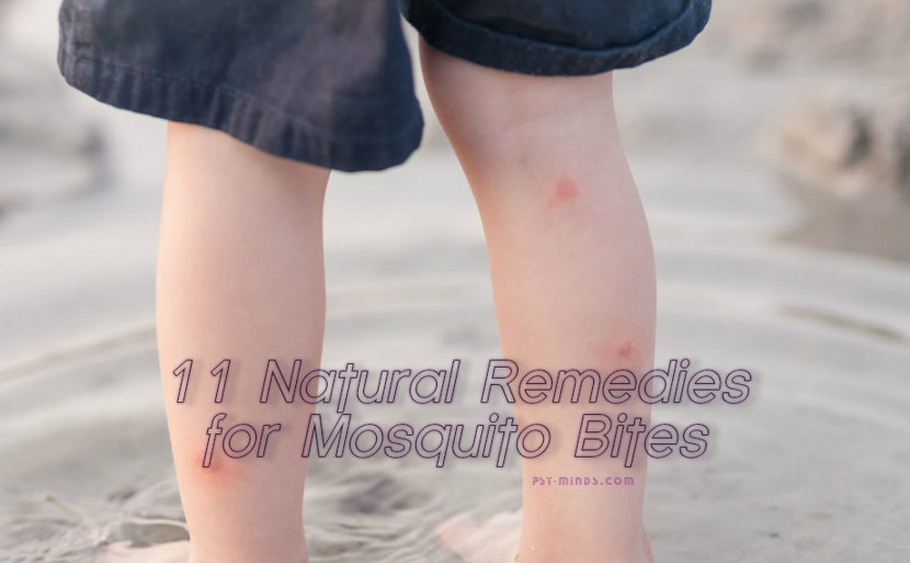 11 Natural Remedies for Mosquito Bites
