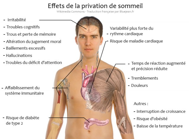 privation-sommeil