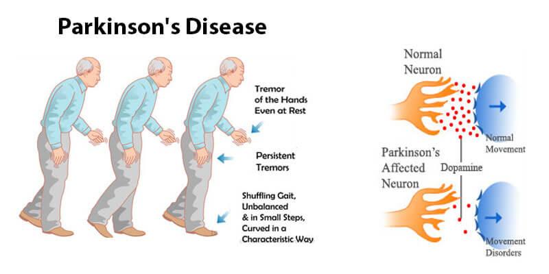 La DOPA Decarboxylase et son rôle dans la maladie de Parkinson 1