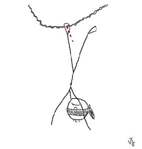 Oedipe, une cordelette passée au pied pour le suspendre aux arbres