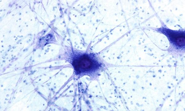 идеокинезис