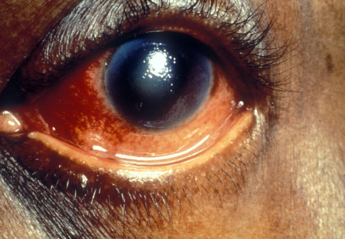 Glaucoma: What's in a word?