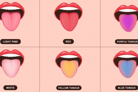 Important Secrets Your Tongue Reveals About Your Health