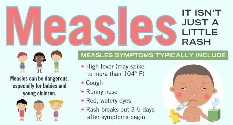 New King County measles case