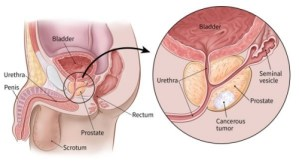 Cancer of the Prostate