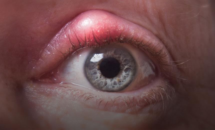 Eye swelling Blepharitis