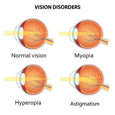 Refractive Errors: Types, Symptoms, Treatment