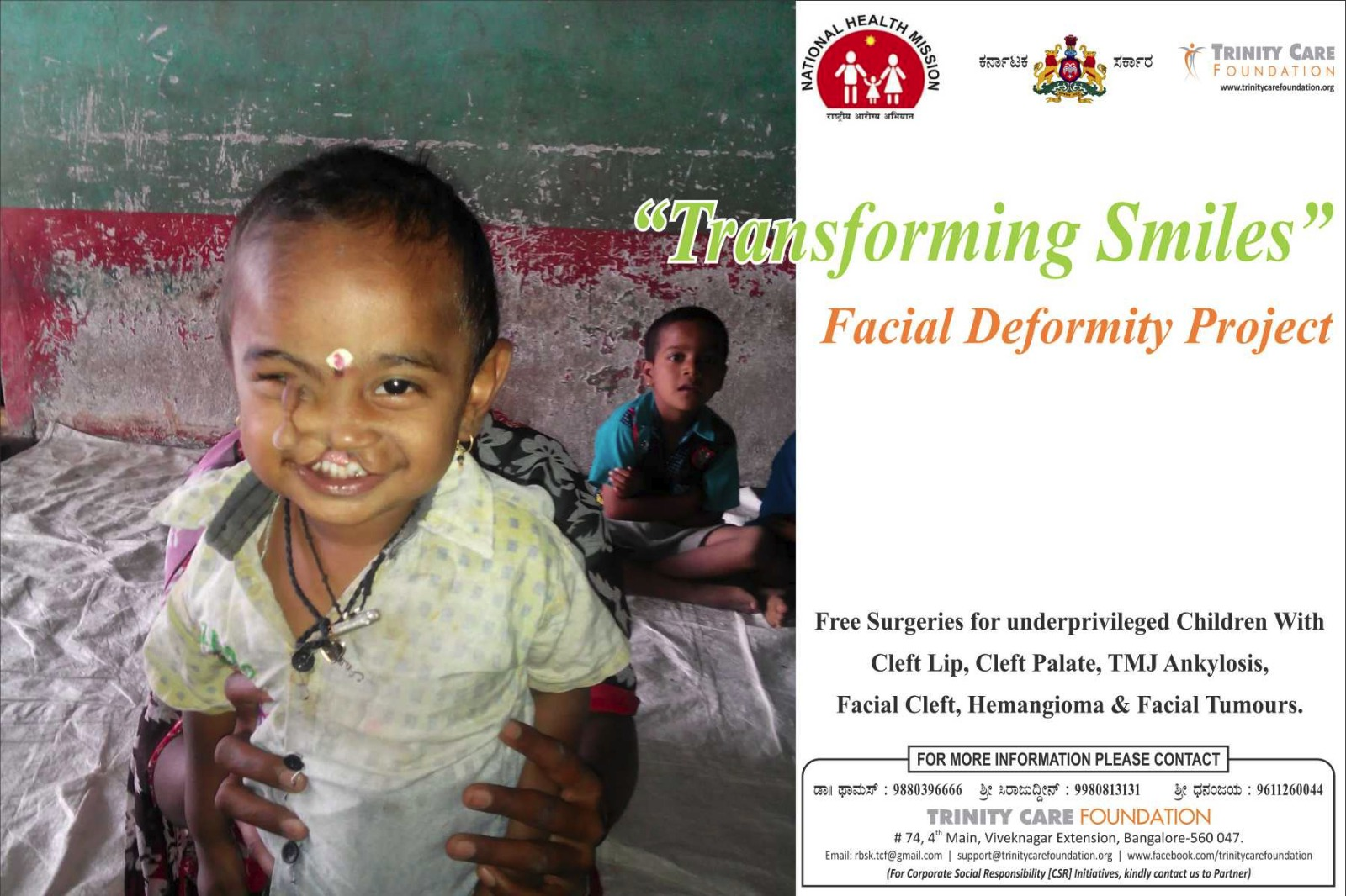 Free Cleft lip palate surgery in Bengaluru City, Karnataka