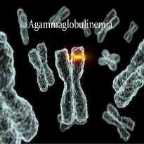 Agammaglobulinemia, odporność i szczepienia – Roman Bystrianyk