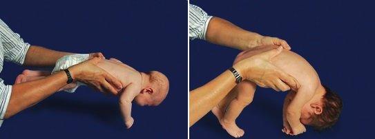 Rozwój motoryczny 2-miesięcznych niemowląt - Wyprost Obronny