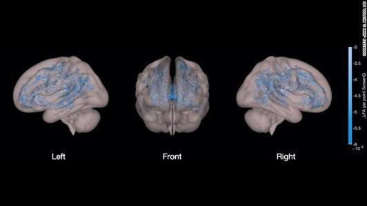 ilość czasu przed ekranem - MRI