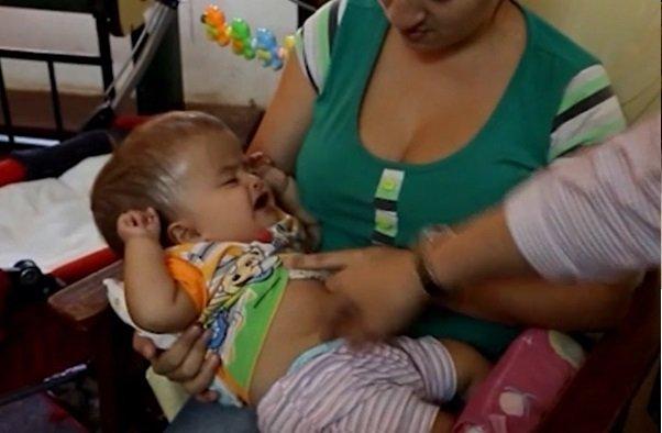 Dziecko posiada dwie deformacje ciała.