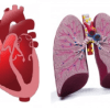 ICU Physiology in 1000 Words: Visualizing Heart-Lung Interaction