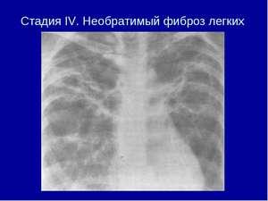 Постлучевой фиброз легких продолжительность жизни. Причины фиброза легких, и как его вылечить полностью