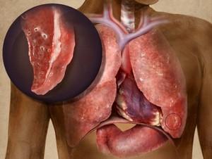 Очаговый туберкулез легких заразен или нет