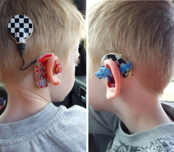 Uk Mom Turns Kids Hearing Aids Into Awesome Fashion