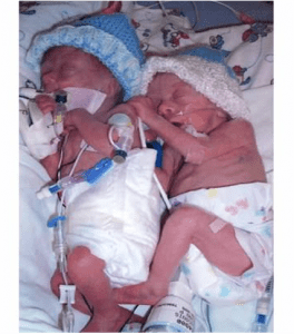 Aidan and Ethan when they were born