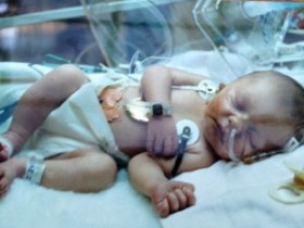 Kami Sutton just 2 days old in the Intensive Care Unit at Seattle Children's