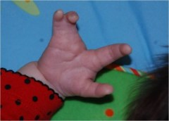 Olivia's cleft hand before surgery