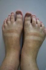 annes feet