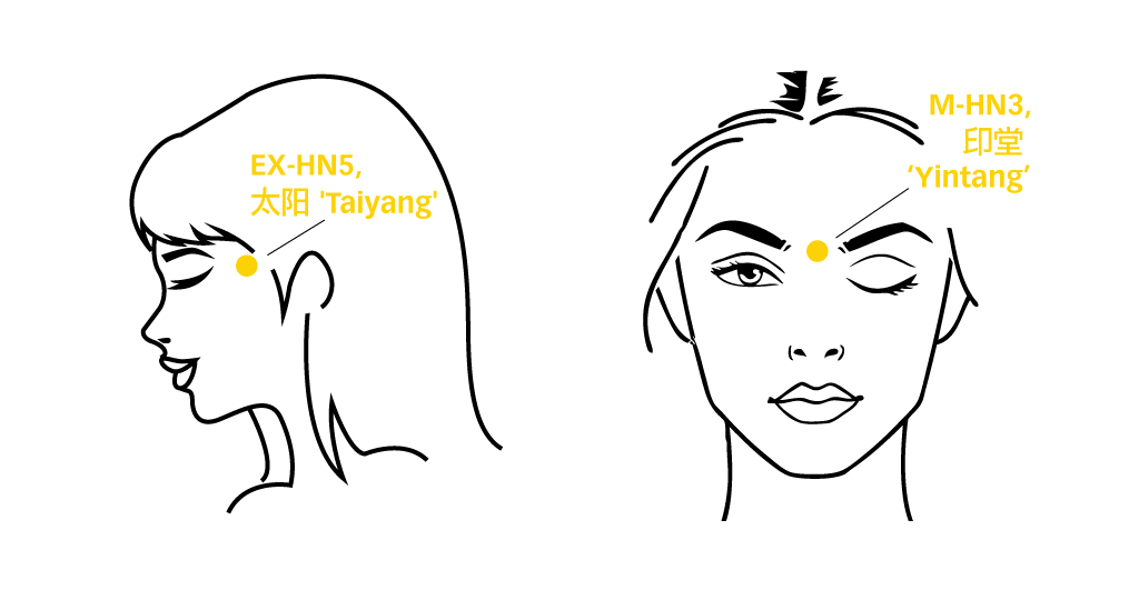 Migraine-taiyang-yintang